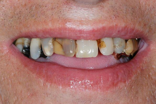 Zahnarzt Luzern - Gesamtsanierungen